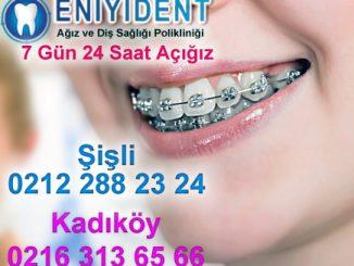 çocuk-diş-teli-fiyatları