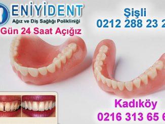 damak-diş-fiyatları