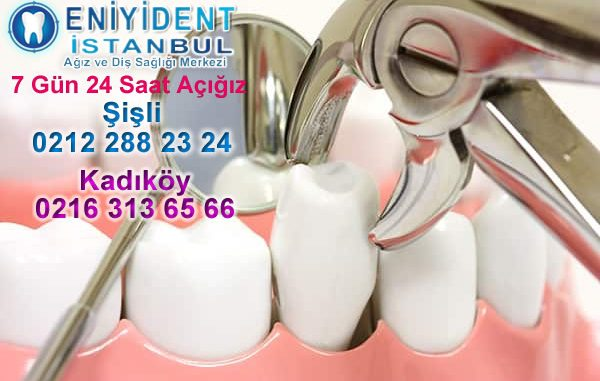 diş çekimi