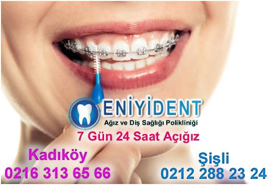 diş-teli-temizliği