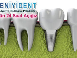 en-iyi-implant-hangisidir