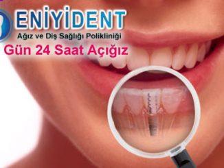 implant-diş-çeşitleri