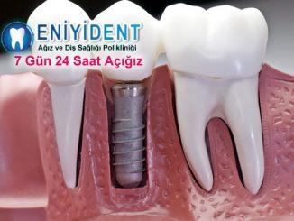 implant-diş