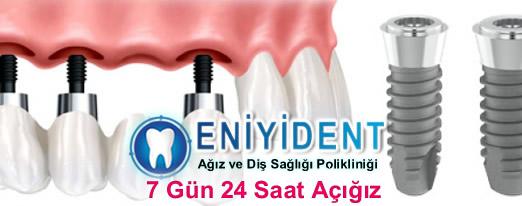 implant-diş-fiyatları