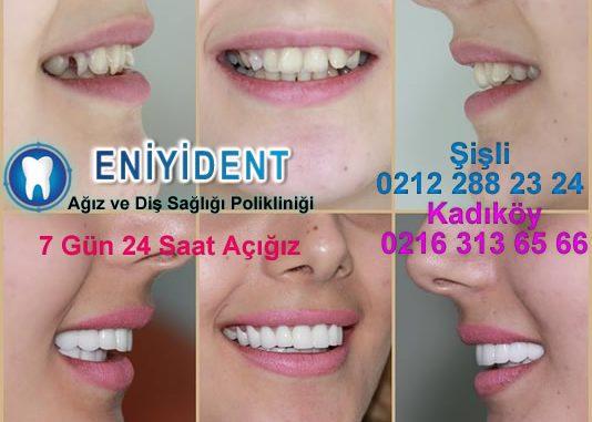 porselen diş kaplama